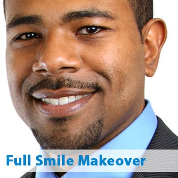 full smile makeover patient